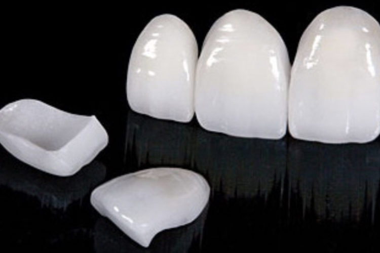 veneer teeth dubai